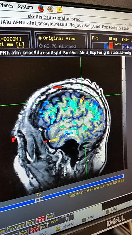 Repeated Head Injury Causes Neurodegeneration, but Link to ALS Less Clear