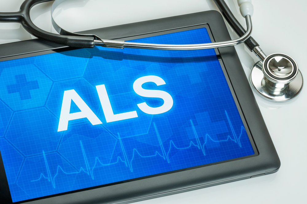 Endothelin 1 Levels Found to be Elevated in ALS Patients: Possible Treatment Avenue