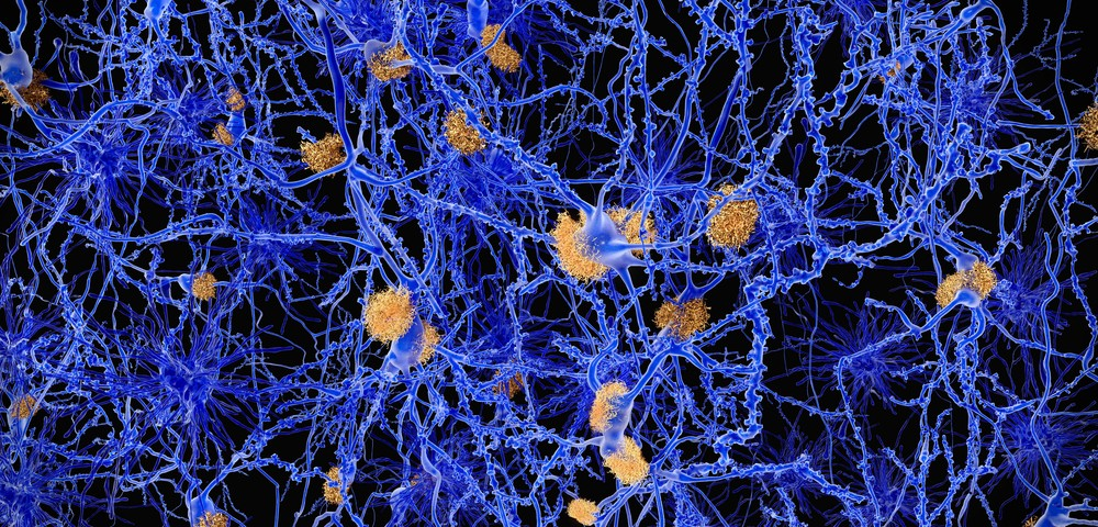 ALS Protein Dynamics May Hold Clues for Disease Progression