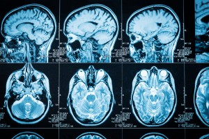 TRACK ALS Succeeds in Measuring Brain Inflammation Using a PET Scan and Biomarker