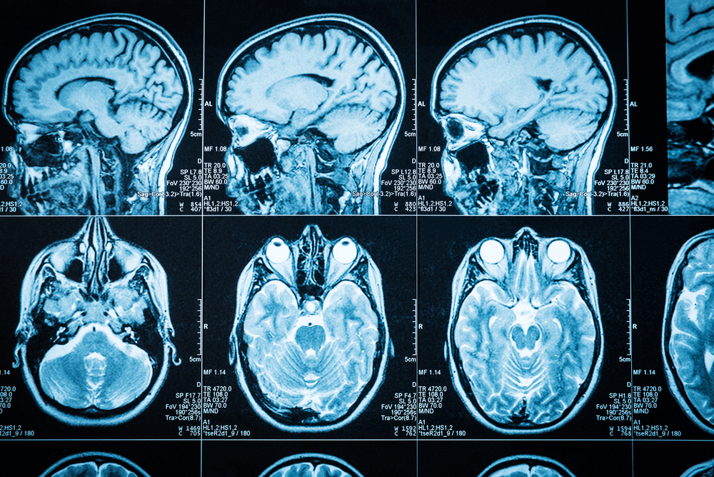 Track Als Succeeds In Measuring Brain Inflammation Using A