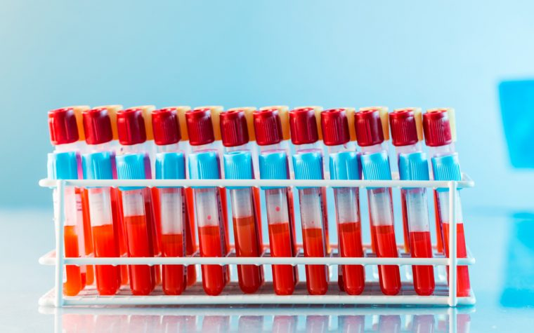 Early diagnosis of ALS using blood levels of copper isotopes