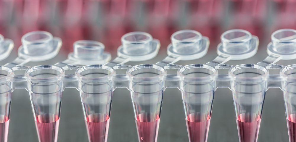 Target ALS Selects Biorepository for Human Stem Cell Lines