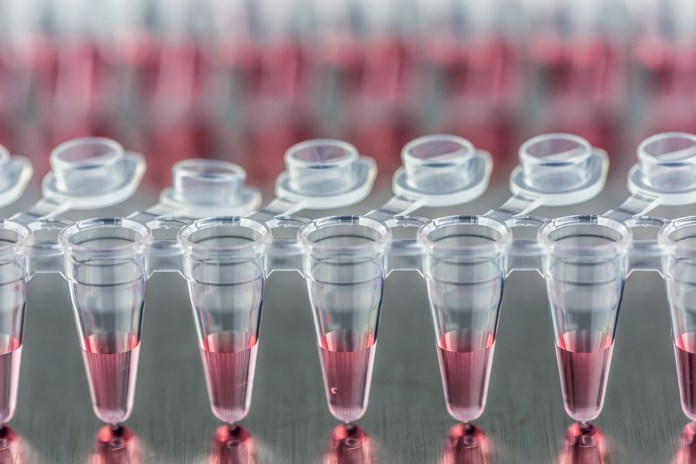 Stem cell gene therapy for ALS