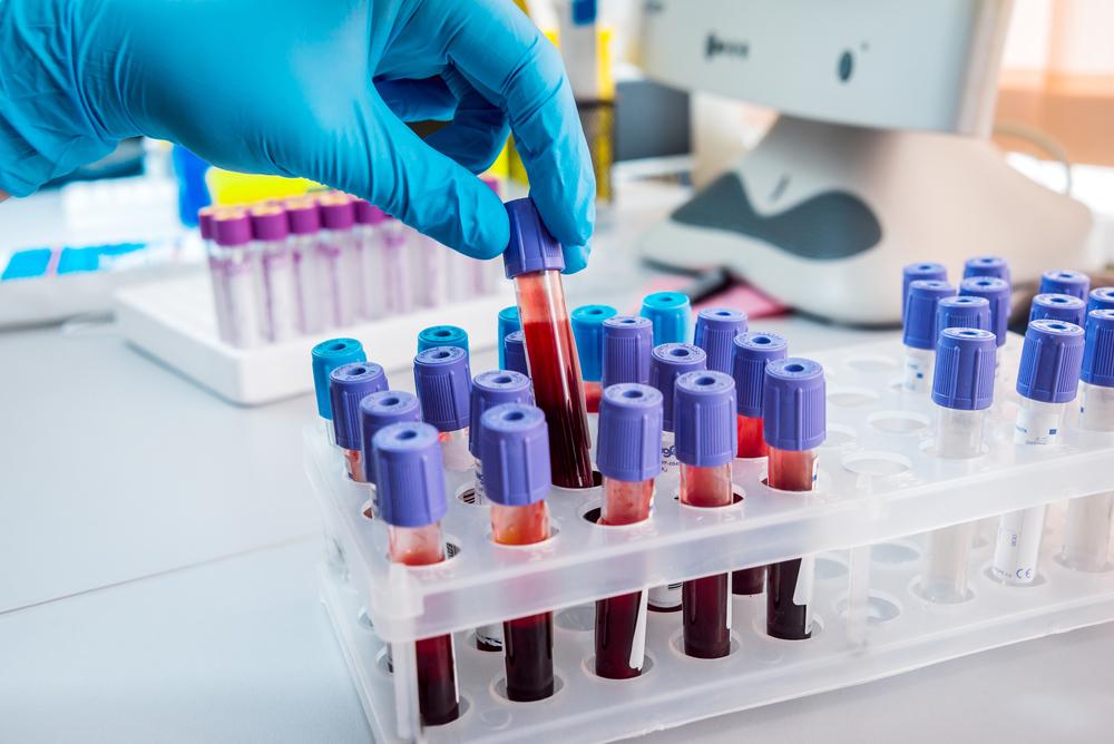 antibodies as ALS biomarker