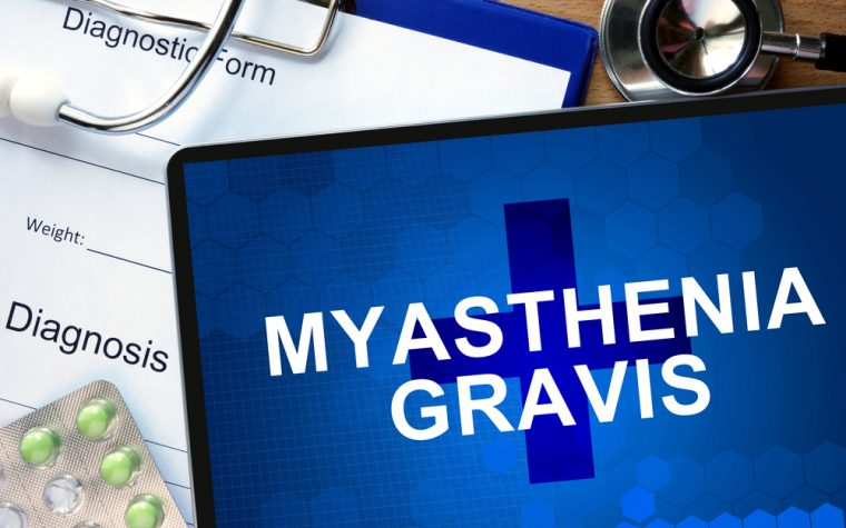 ALS and myasthenia gravis