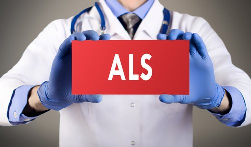 Facial Nerve Atrophy Seen on High-resolution MRI Helps Diagnose ALS in Early Stages, Study Reports