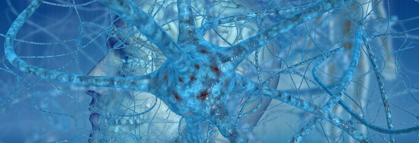 Measuring Neurofilament Levels Might Improve Diagnosis of Early Symptomatic ALS