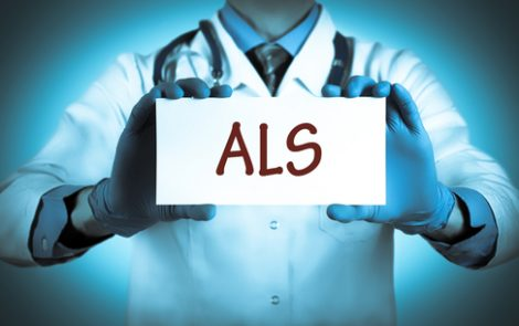 Prediction Model May Help Personalize Survival Prognosis in ALS Patients, Researchers Say