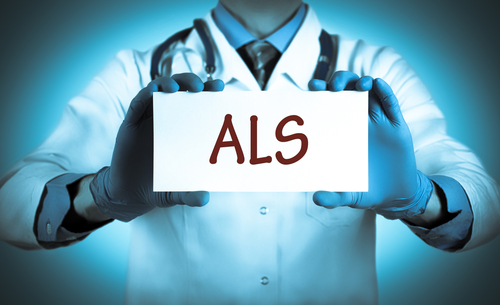 stem cell transplants and ALS