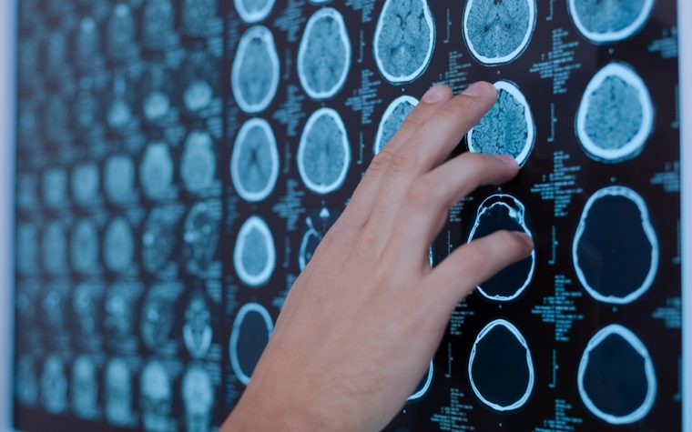 New Study Reveals Two Genes Associated with High Risk for ALS