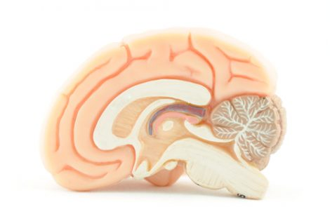 Changes in Brain Structure, Blood Flow Linked to Varying Cognitive Deficits in ALS