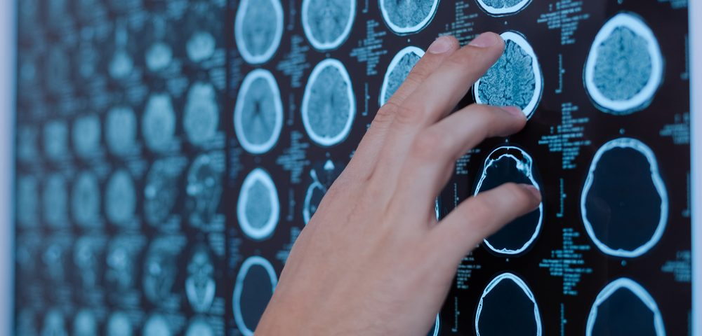 ALS MRI Marker May Facilitate Diagnosis and Monitoring, Study Finds