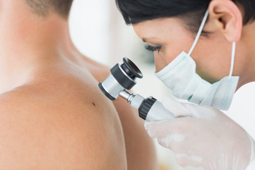 skin cancer and genes