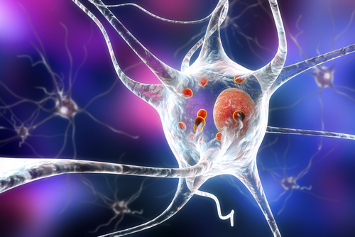 ALS Hallmark, Clumps of TDP-43 Protein, Appears to Protect Nerve Cells, Study Reports